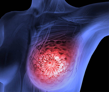 breast cancer treatment, best clinical oncologist in kolkata